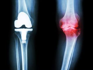 joint pain in winters